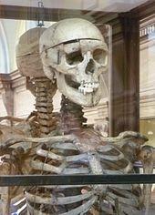 170px-William_Burke_s_skeleton