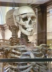 170px-William_Burke_s_skeleton